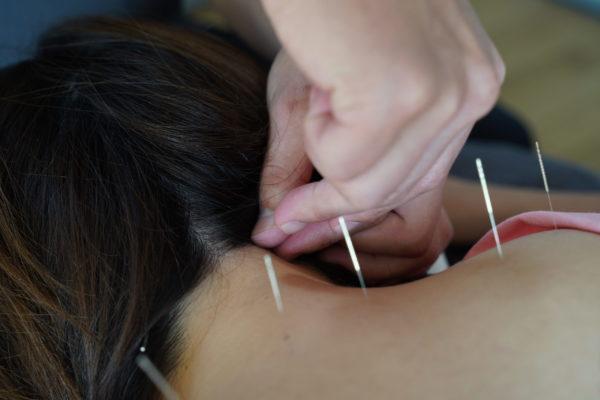 後頭部への鍼灸