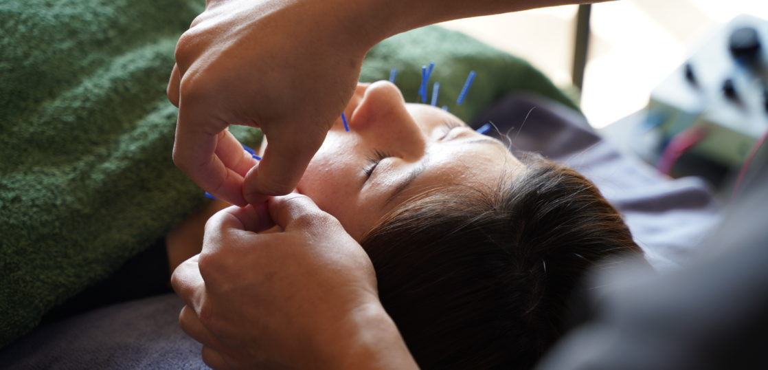 Beauty acupuncture and moxibustion