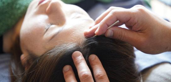 美髪鍼施術の様子